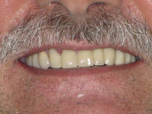 AFTER (Upper titanium Implants with Bonegraft - Porcelain Fused to Metal crowns )