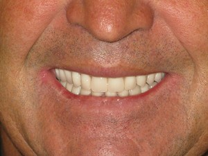 AFTER- (upper BPS complete Denture & Lower Porcelain Fused to Metal Crowns