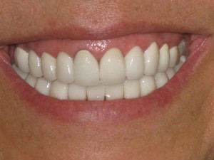 After (Emax & Zirconia crown)