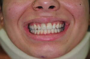 After (emax veneer tooth nos. 11 and 21)