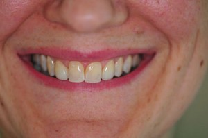 after (Upper EMAX CROWNS on teeth#s 12 & 22 )