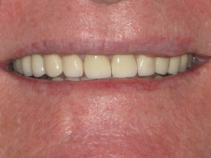 after (Upper & Lower Emax crowns )