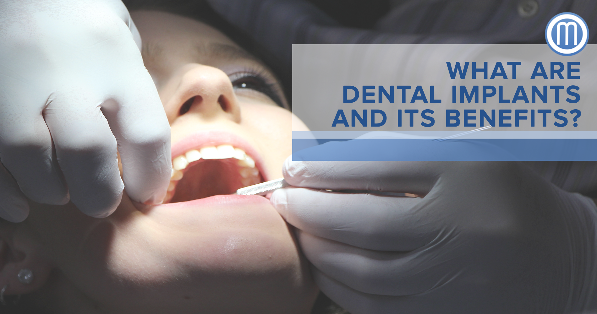 What Are Dental Implants And Its Benefits? - Makati Dentist ...